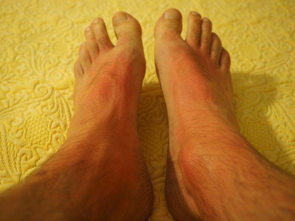malade pied